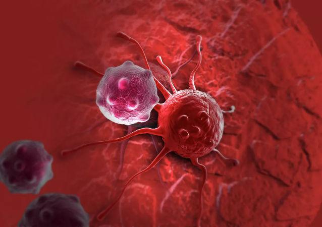 俄科学家找到通过呼气检测呼吸道癌症的方法