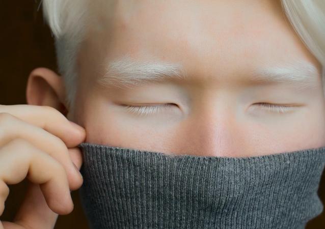哈萨克斯坦身患白化病的小伙子以不寻常的外表惊倒摄影师