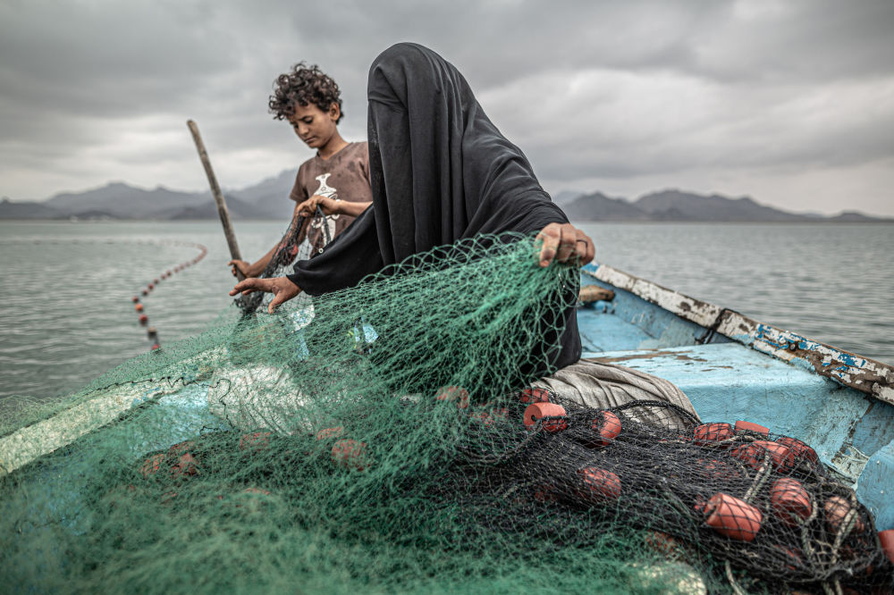 也门照片:阿根廷摄影师巴勃罗•托斯科的《饥饿,另一个战争创伤》,获得当代热点类第一名。