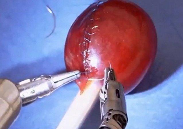 机器人医生缝葡萄!技术创造奇迹!