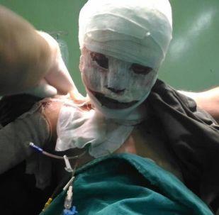 被烧伤的叙利亚女孩遭到更严重的媒体中伤