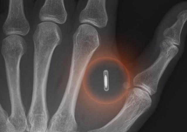 瑞典公司职员在身体里植入电子芯片