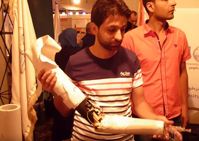 视频:叙利亚大学生发明了价格不贵的仿生手