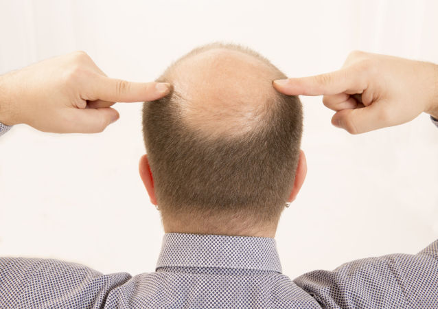 欧洲医生:早秃顶、少白头男性患心脏病风险高