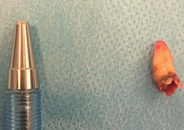 丹麦男子鼻内长出牙齿