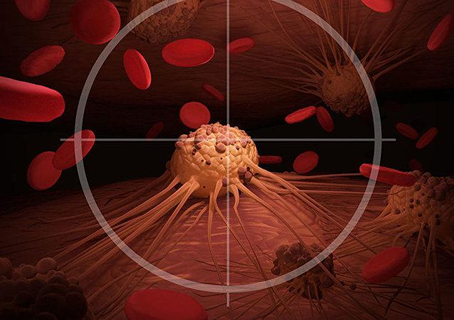 科学家指出五个经常被忽略的癌症征兆