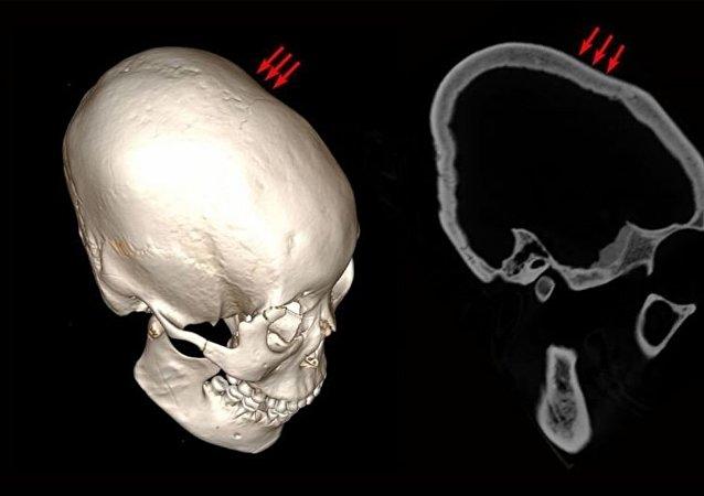 在中国发现了有12000年历史的变形头骨