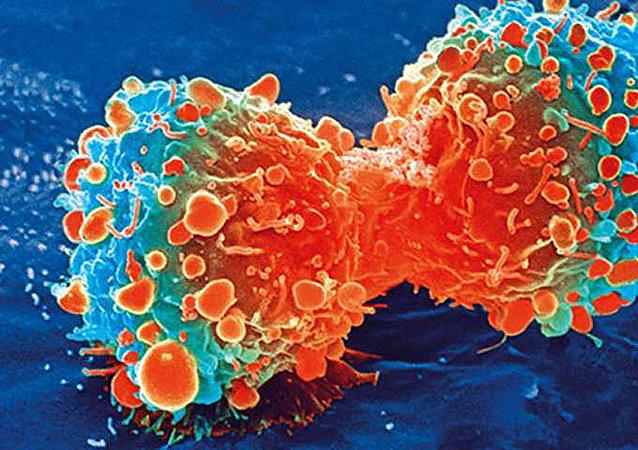 美国科研人员提出全新癌症治疗方案