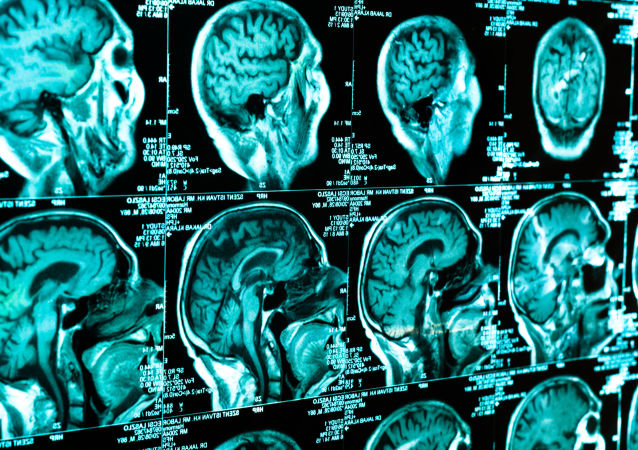 人脑,扫描
