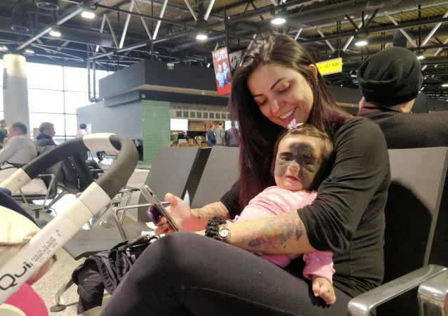 脸上长黑斑胎记的美国女婴已在俄罗斯做手术