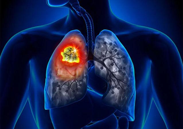 肺癌的首发症状