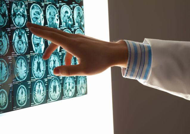 专家介绍患脑肿瘤的意外预兆